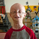 Sam Berns, a 17 year old miracle boy with a huge mission to change the world